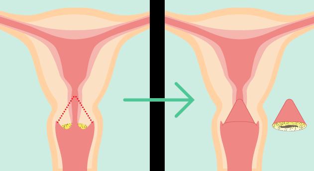 高度 子宮 手術 形成 後 異 頚部