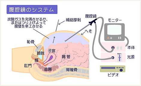 腹腔鏡手術IMAGE 手術はモニターを見ながら遠隔操作で行います。 腹腔鏡手術は、お腹を大き..