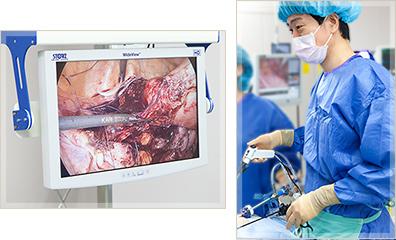 不妊治療内視鏡手術と不妊治療